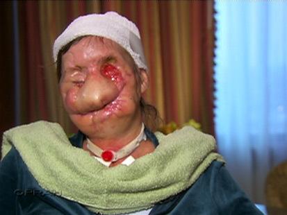 Charla Nash, after